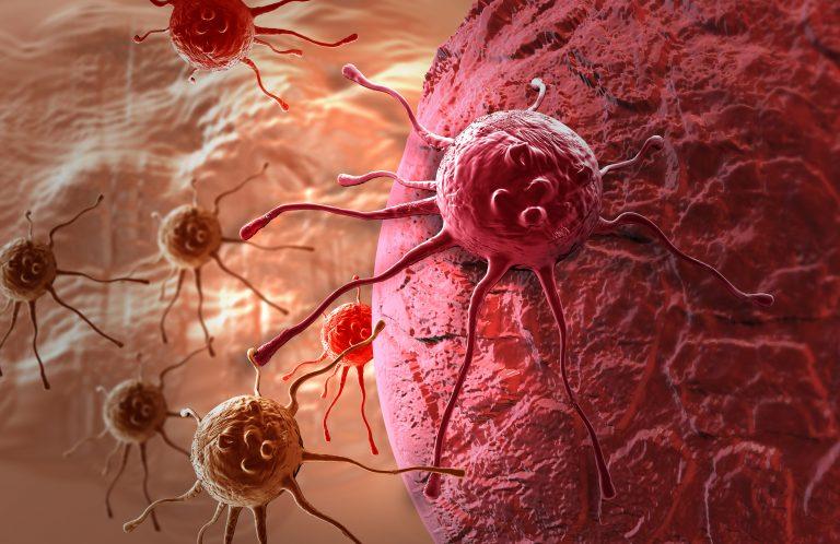 """Nhật Bản dùng công nghệ """"phóng đại"""" tiêu diệt tận gốc các tế bào ung thư"""